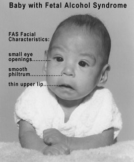 Baby with Fetal Alcohol Syndrome